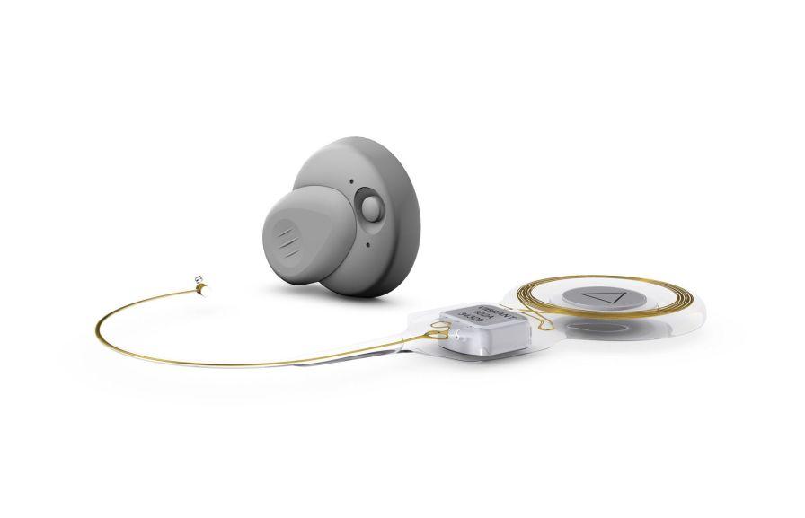 Internal part middle ear implant / body-worn processor VIBRANT SOUNDBRIDGE® MED-EL