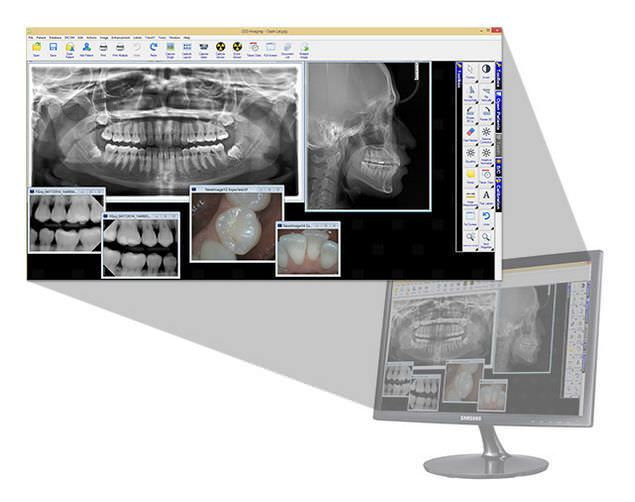 Analysis software / viewing / for dental imaging / dentist office LED Dental