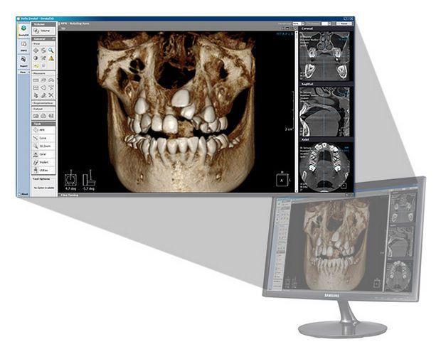 Analysis software / 3D viewing / for dental imaging / dental Xelis 3D LED Dental