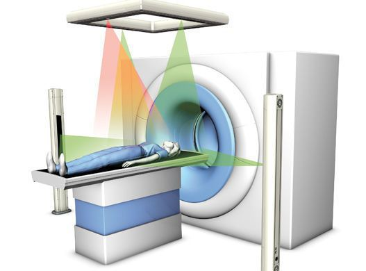 Radiosurgery virtual simulation laser DORADOselect 4 LAP Lasers