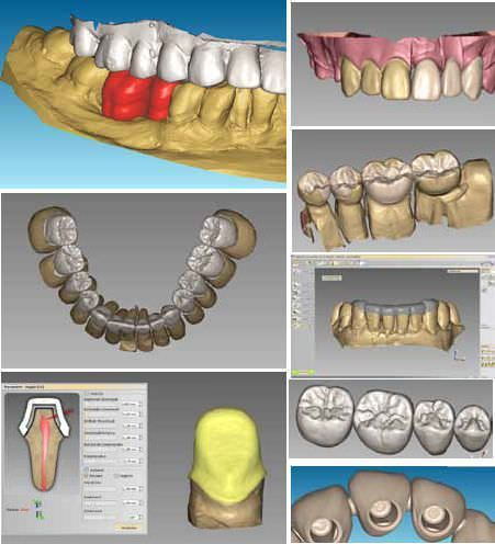 CAD software / CAM / for dental prosthesis design / medical OpenCAD V.4 Laserdentium