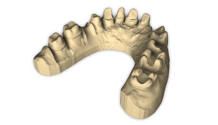Dental laboratory dental CAD CAM scanner Scan 100 Laserdentium
