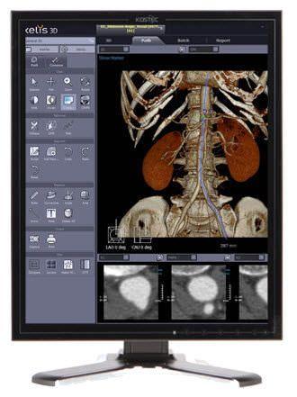 "High-definition display / LCD / medical 21.3"", 14 bit   D213Q5 Kostec"