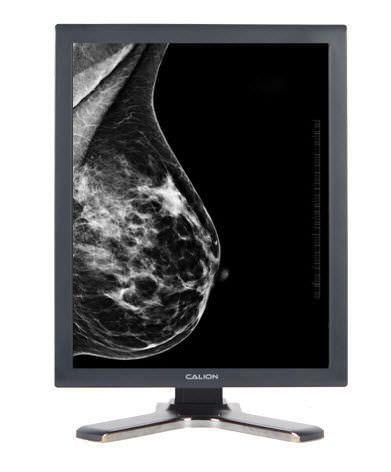 "Monochrome display / LCD / high-definition / medical 21.3"", 14 bit   Calion D213V5E Kostec"