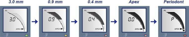 Dental apex locator with pulp vitality testers EndoEst JSC Geosoft Dent