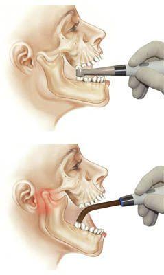 LED curing light / UV / dental / cordless Estus LED-Alladin JSC Geosoft Dent