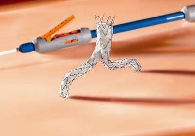 Abdominal stent graft E®-VITA Jotec