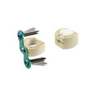 Cervical interbody fusion cage / anterior / pre-filled Duolib PEEK OPTIMA™ Item