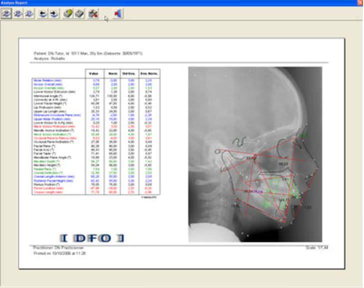 Cephalometric analysis software / medical Mediadent DFO IMAGELEVEL