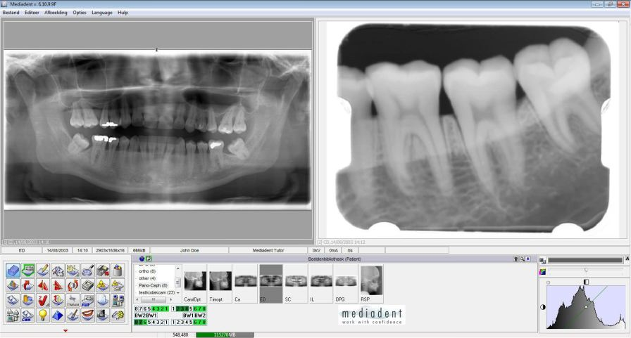 Medical software / for dental imaging Mediadent IMAGELEVEL