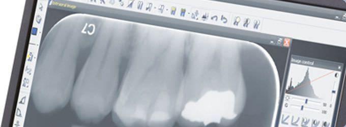 Medical software / for dental imaging CLINIVIEW™ Instrumentarium Dental