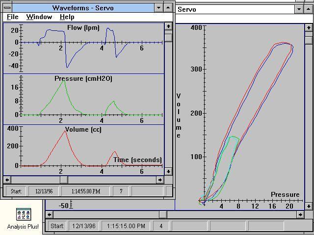 Pulmonary testing software / medical PMG 3000 IngMar Medical
