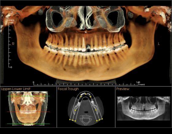 Medical software / for dental imaging Tx STUDIO™ Imaging Sciences International