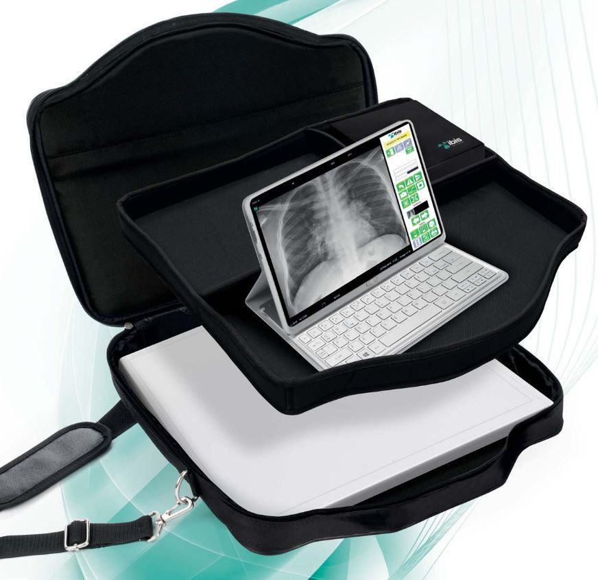 Digital medical radiography acquisition system / for radiography / portable EASY IBIS