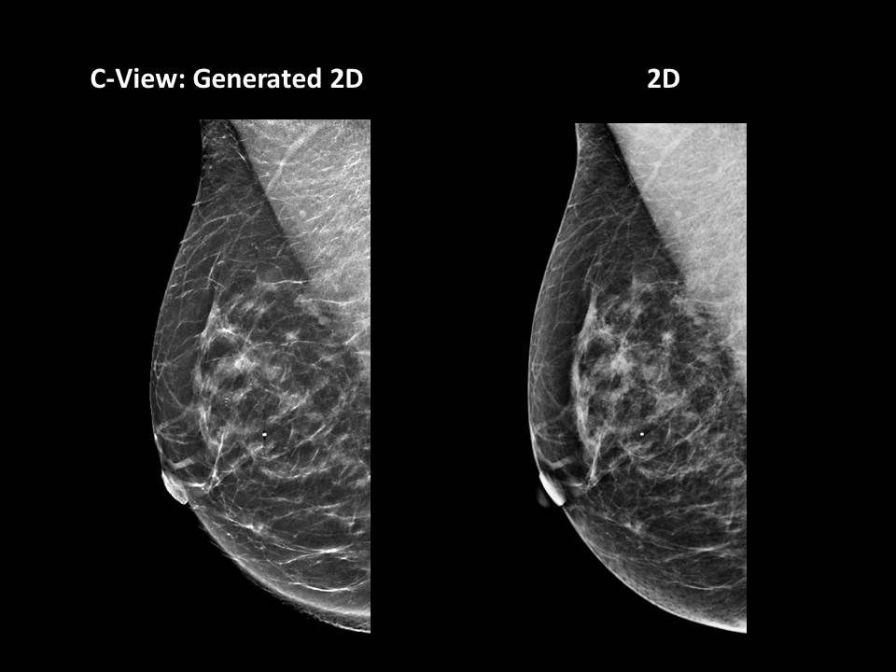 Diagnostic software / viewing / medical / for mammography C-View™ Software Hologic