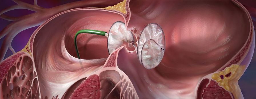 Atrial septal defect occlusion device GORE® HELEX® Gore