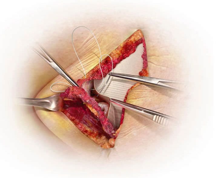 Umbilical hernia prosthesis / abdominal GORE® DUALMESH® PLUS Gore
