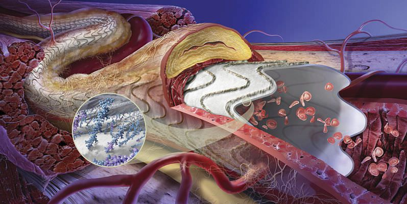 Aortic endoprosthesis (ePTFE) GORE® VIABAHN® Gore