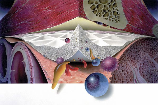 Inguinal hernia prosthesis / abdominal GORE® MYCROMESH® Gore