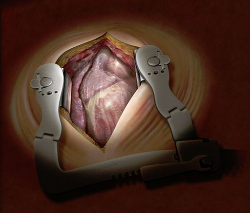 Pericardial patch GORE® PRECLUDE® Gore