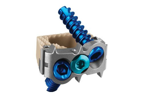 Cervical interbody fusion cage / anterior / with cervical bone plate / 1 level COALITION® Globus Medical
