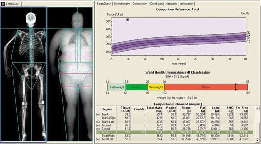 Data exchange software / analysis / for bone densitometry enCORE GE Healthcare
