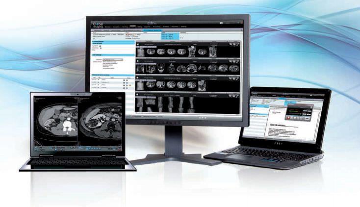 Teleconsultation software GXD? Telemedicine GLOBAL IMAGING ON LINE