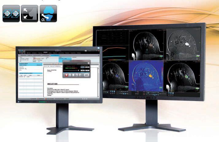 Medical imaging computer workstation / medical / for PACS GXD? Diagnostics GLOBAL IMAGING ON LINE