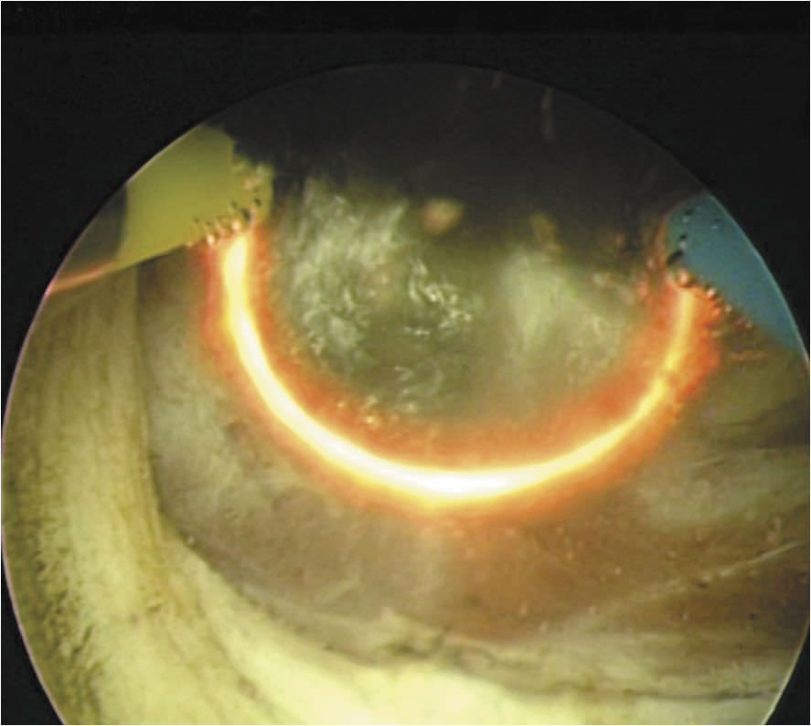 Cysto-resectoscope endoscope / rigid EMED