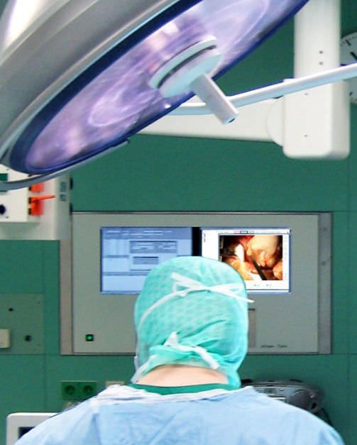 Digital camera / for operating theaters / high-definition ChromoVision HD-SDI Berchtold