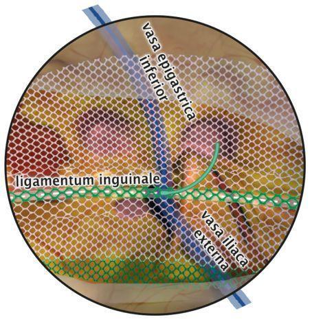 Inguinal hernia prosthesis DynaMesh®-ENDOLAP 3D DynaMesh / FEG Textiltechnik
