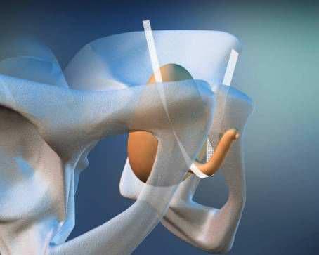 Urinary incontinence mesh reconstruction mesh / retropubic approach / transobturator approach / woman DynaMesh®-SIS soft / -SIS DynaMesh / FEG Textiltechnik