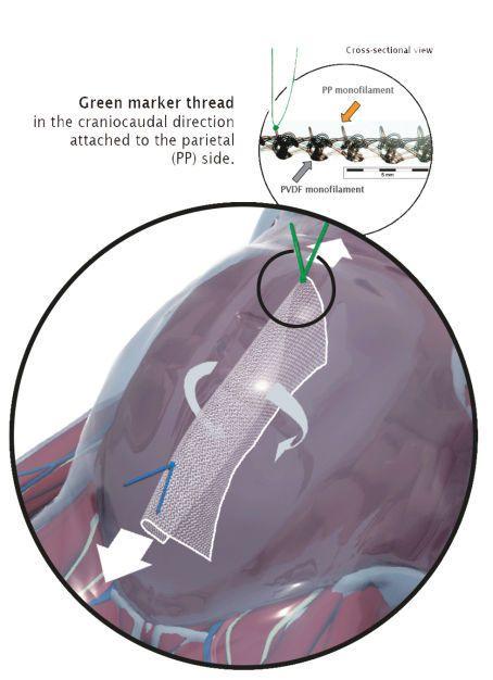 Abdominal hernia prosthesis DynaMesh®-IPOM DynaMesh / FEG Textiltechnik