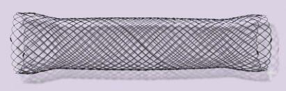 Duodenal stent / nitinol Endo-Flex