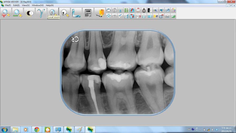 Medical software / for dental imaging Apixia Digital Imaging Apixia Inc.