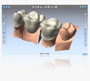 CAD software / 3D viewing / for dental imaging Shining3D-DentCAD Shining 3D