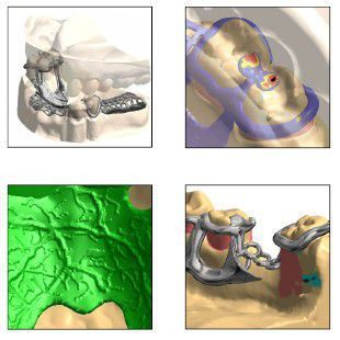 3D viewing software / CAD / for dental imaging Digistell Shining 3D