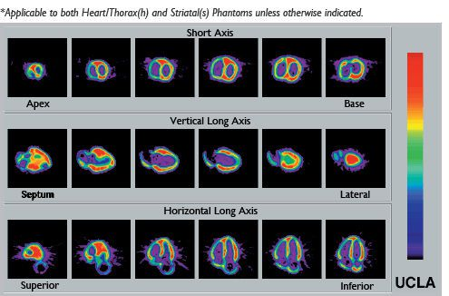 Nuclear imaging test phantom / heart muscle Radiology Support Devices