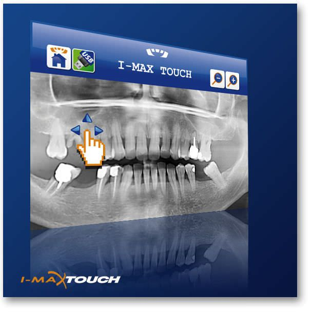 Panoramic X-ray system (dental radiology) / digital I-Max Touch OWANDY