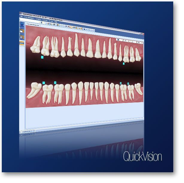 Diagnostic software / control / import / for dental imaging Quickvision OWANDY