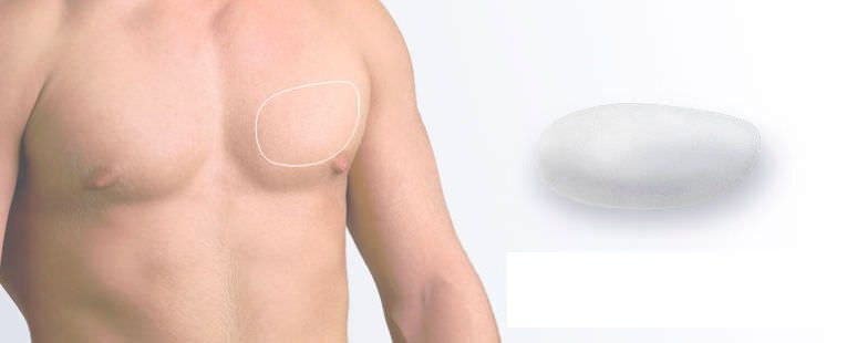 Pectoral cosmetic implant / anatomical / silicone Polytech Health & Aesthetics