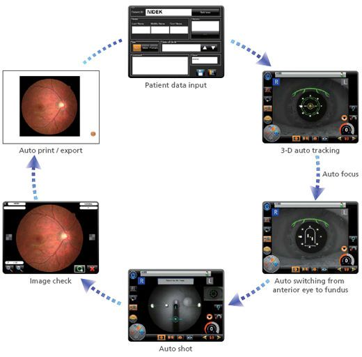 Non-mydriatic retinal camera (ophthalmic examination) AFC-330 NIDEK