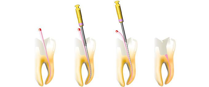 Manual root canal obturator Revo Condensors Micro-Mega