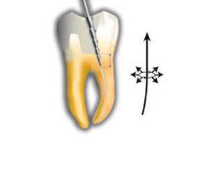 Nickel titanium endodontic file ENDOFLARE® Micro-Mega