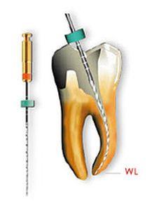 Rotary endodontic file / nickel titanium G-Files™ series Micro-Mega