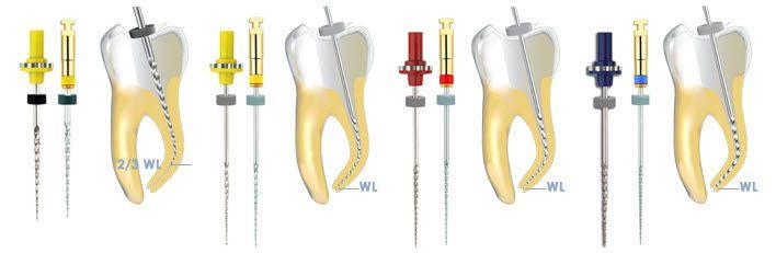 Root canal desobturation dental file HERO Shaper® Micro-Mega