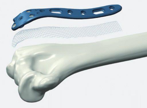 Humerus compression bone plate / distal ALIANS ELBOW Newclip Technics