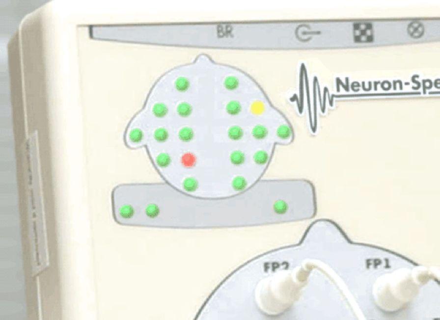 21-channel EEG system Neuron-Spectrum-4/P Neurosoft