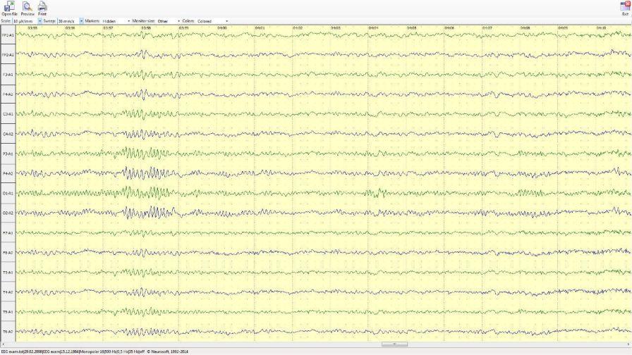 Viewing software / EEG Neuron-Spectrum-Viewer Neurosoft