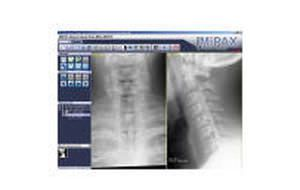 Viewing software / medical / for DICOM files MiViewer Millensys